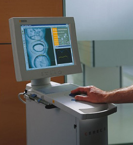 CEREC Screen
