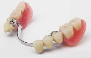 dentures_partial